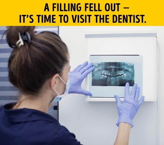 اذا سقط حشوالأسنان يمكنك تركيب اخر
