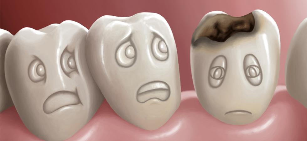 ما يحدث إذا لم تعالج أسنانك المسوسة.. احذر من إهمالها