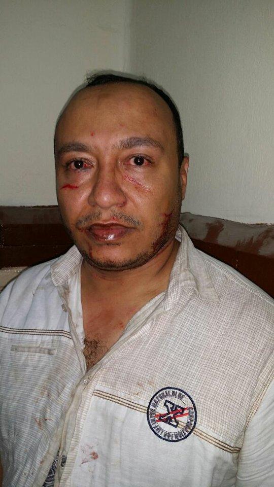 يتعرض للضرب بمركز شرطة بالزقازيق