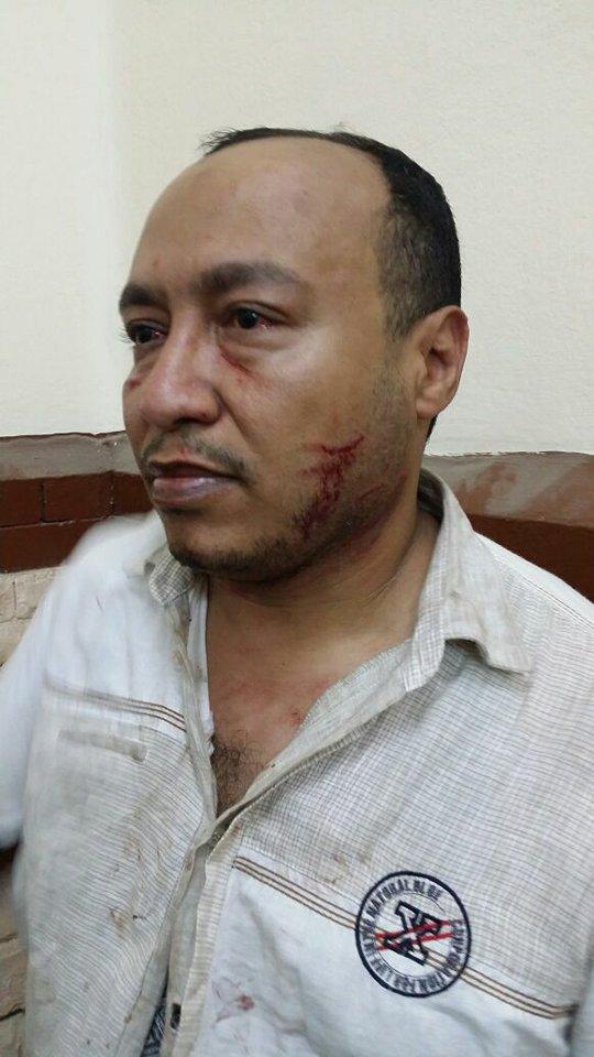 يتعرض للضرب بمركز شرطة بالزقازيق3