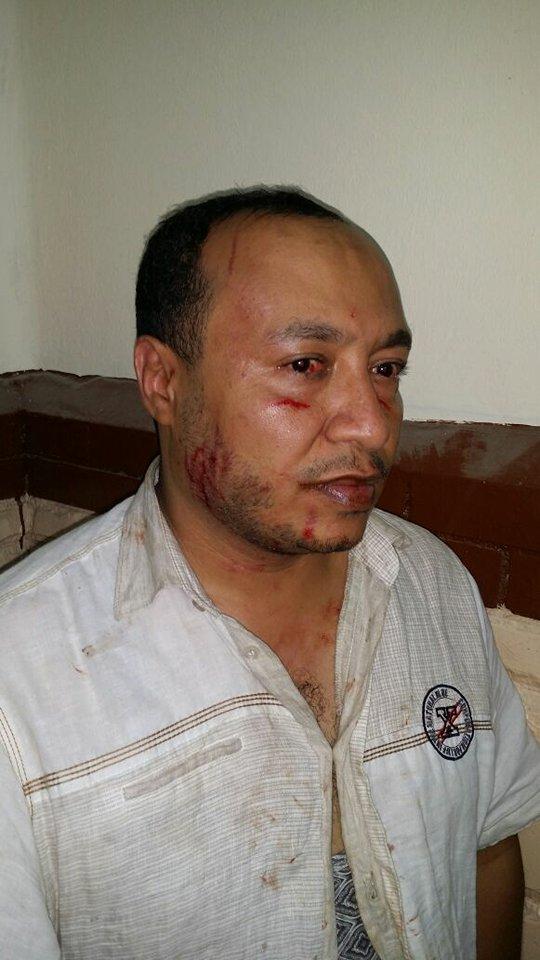 يتعرض للضرب بمركز شرطة بالزقازيق4